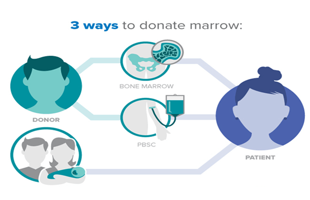 Bone-marrow-donation-techniques
