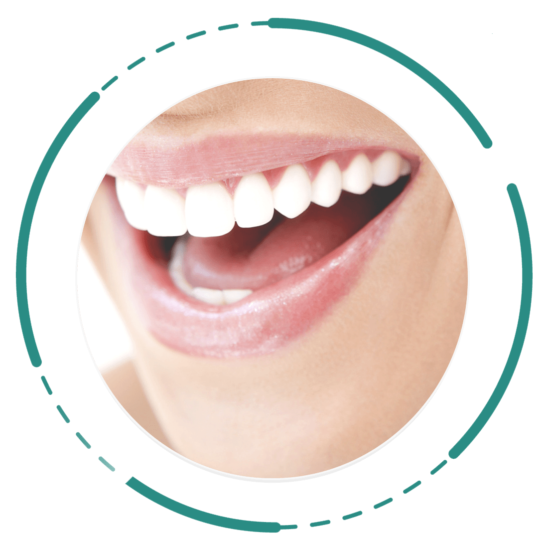 Digital-Smile-Design