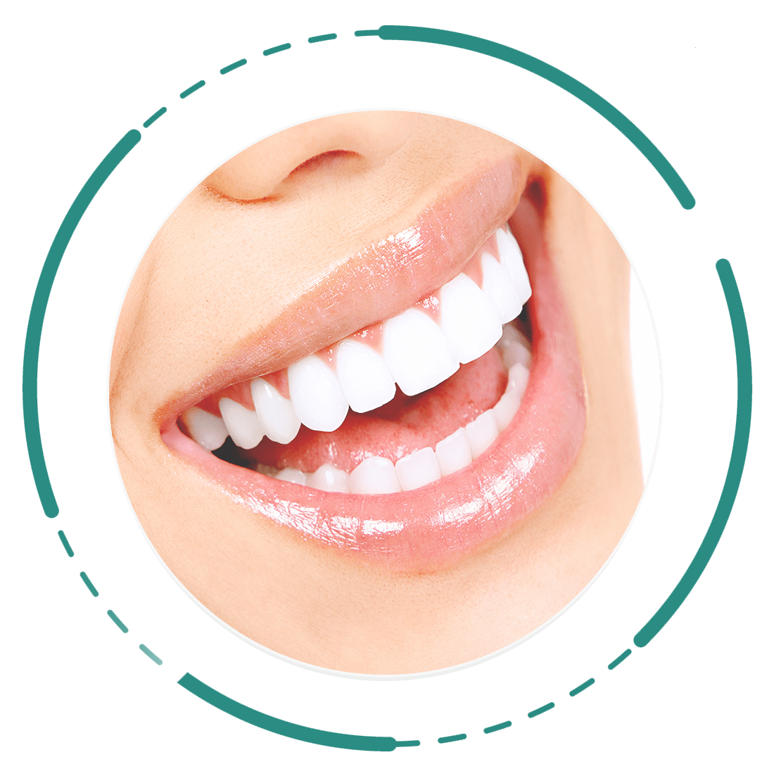 روش دندانپزشکی زیبایی