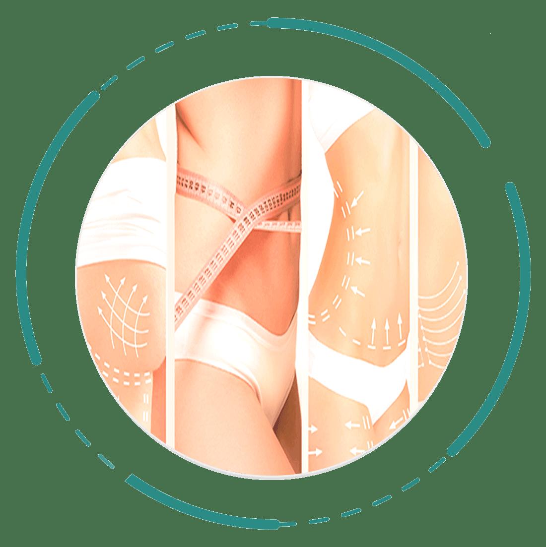 Body-procedures