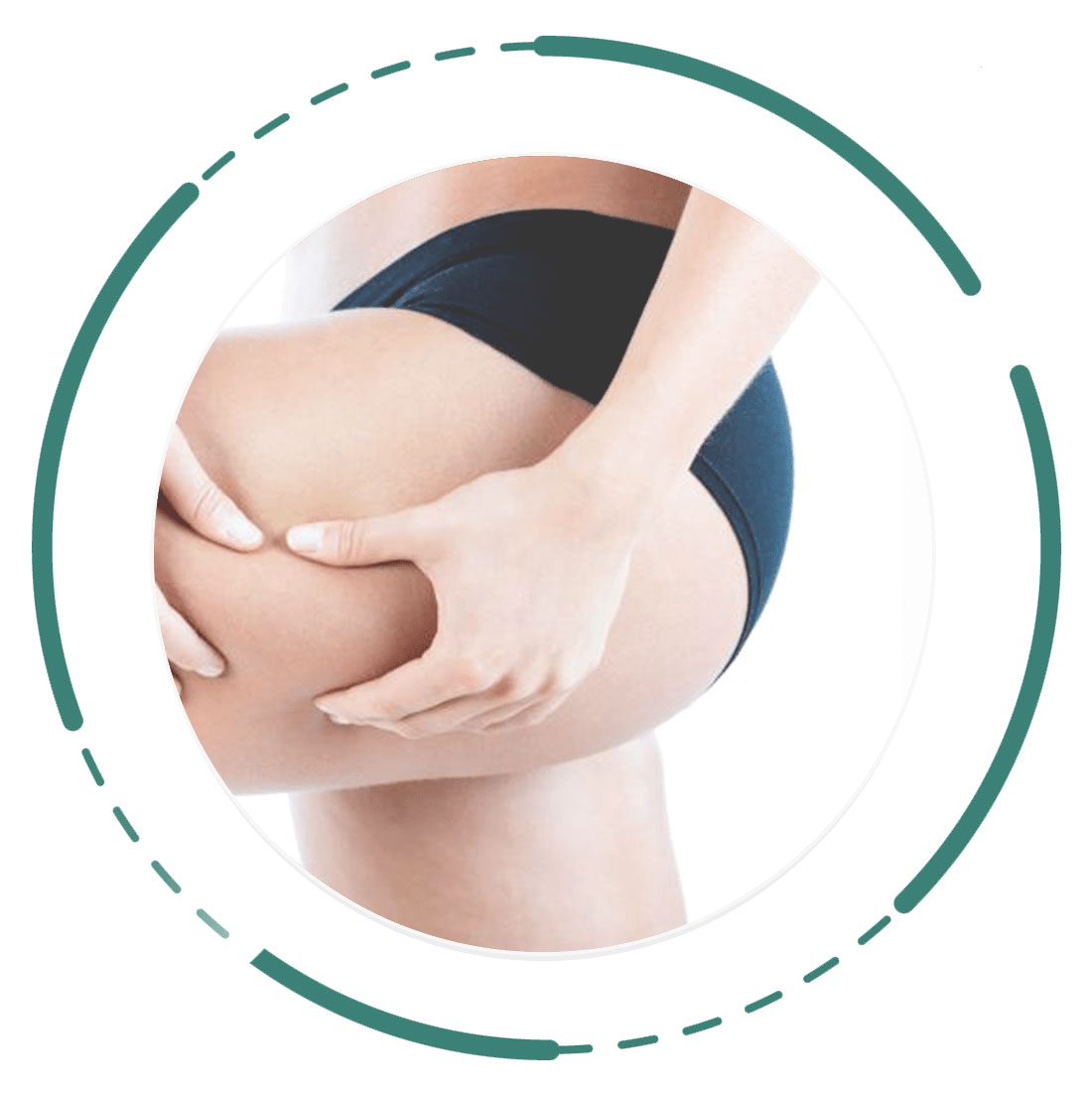 Cellulite-Reduction