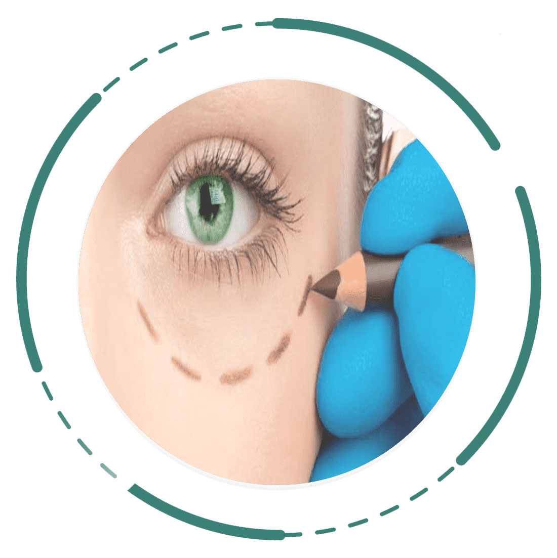 Eyelid-lift