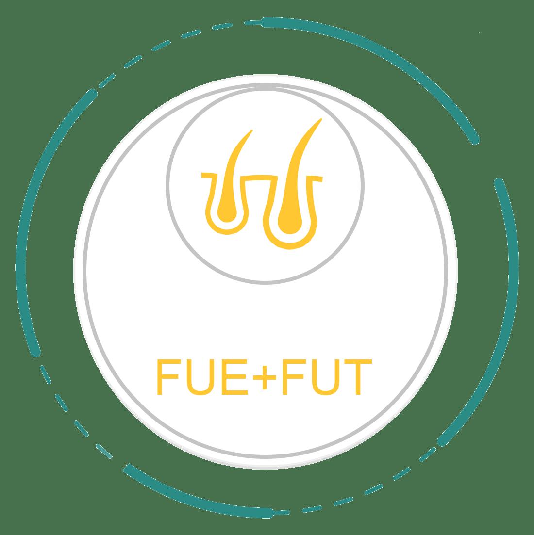 FUE+FUT
