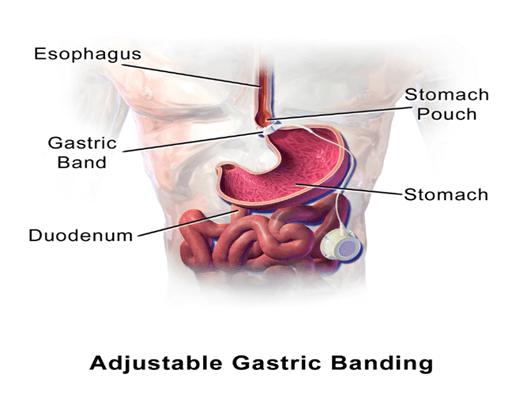 Bariatrics surgery
