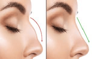 Bony nose surgery