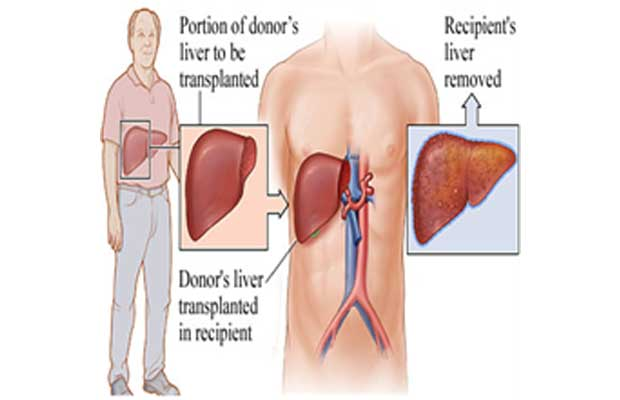 liver donor