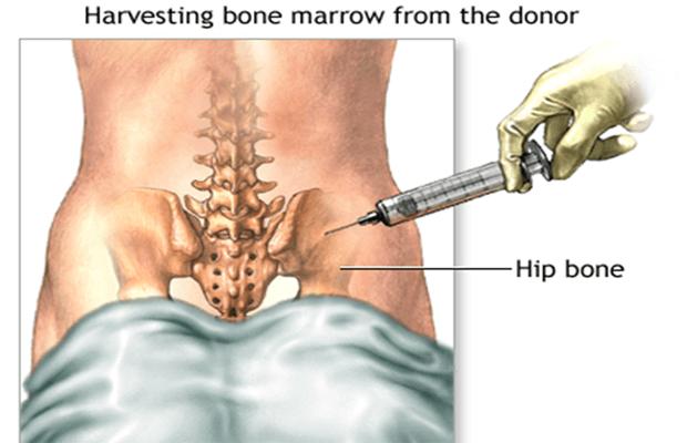 bone-marrow-2