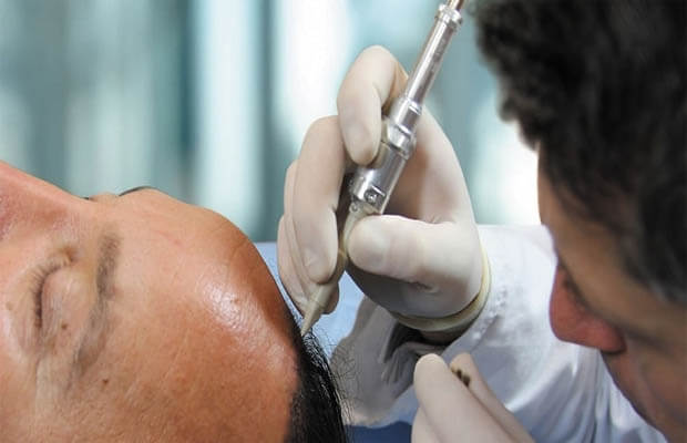 method of hair transplantation