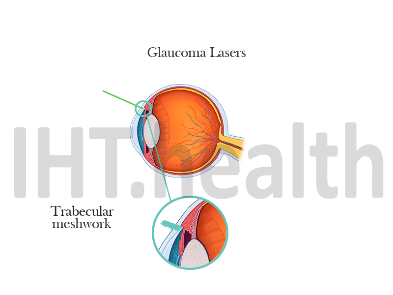 glaucoma lasers