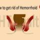 hemorrhoid