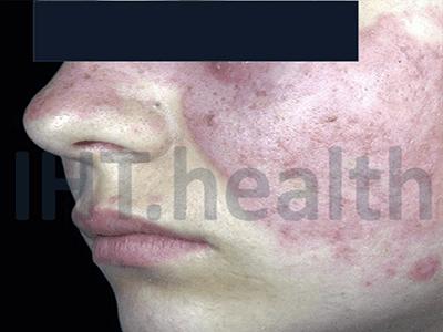 lupus signs