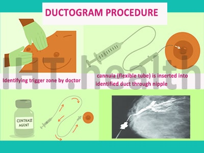 breast ductography